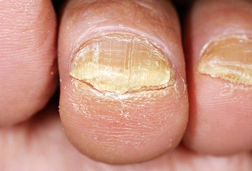 is toenail fungus contagious