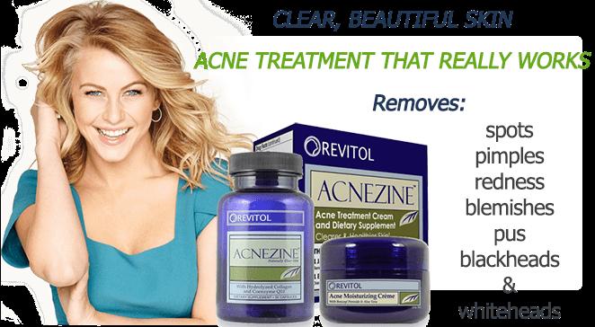 acnezine acne treatment