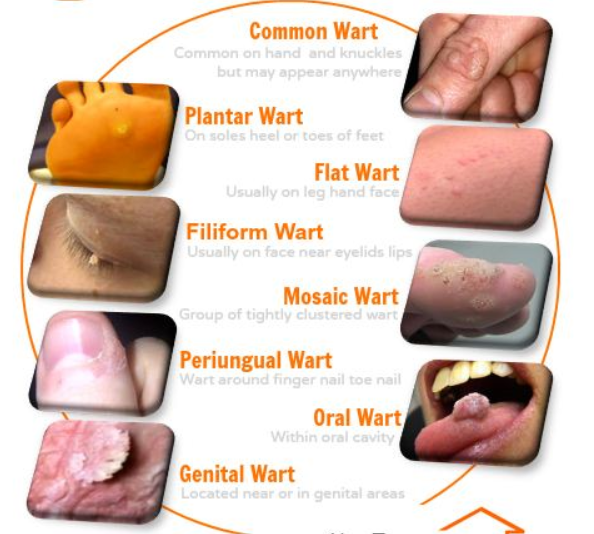 different kinds of warts