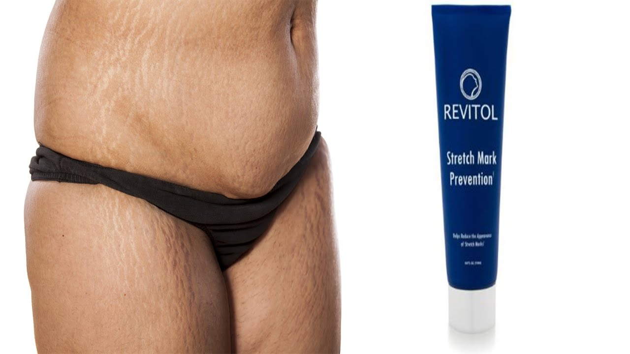 does revitol stretch mark cream work