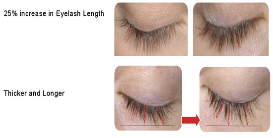 natural lash growth