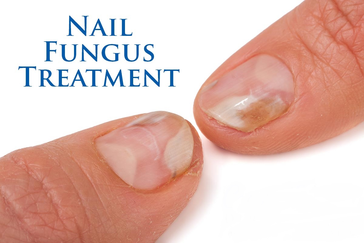 You Must Read These 4 Home Remedies For Nail Fungus