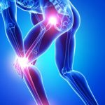 Top 18 Joint Pain Remedies