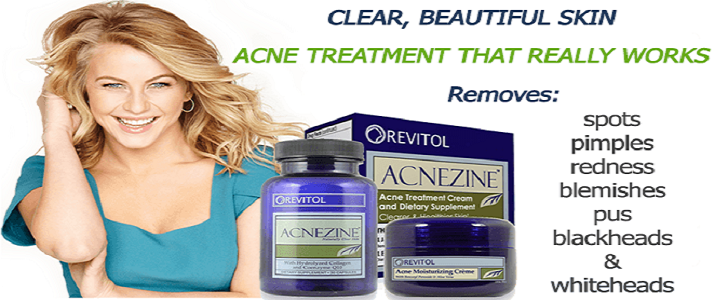 Yeah Or Naah Should You Buy Revitol Acnezine Frank Review