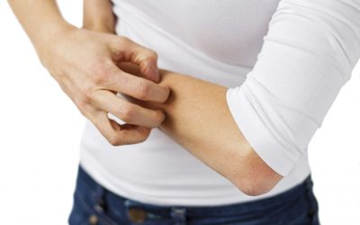 Natural Treatment For Hives All Over Body