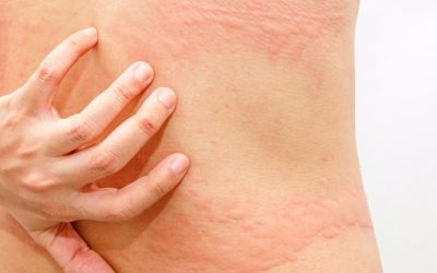 Effective Homeopathic Treatment For Hives & Allergy